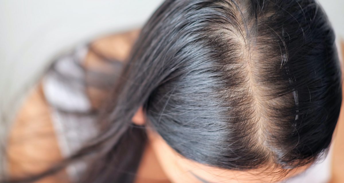 Androgenic hair loss in women
