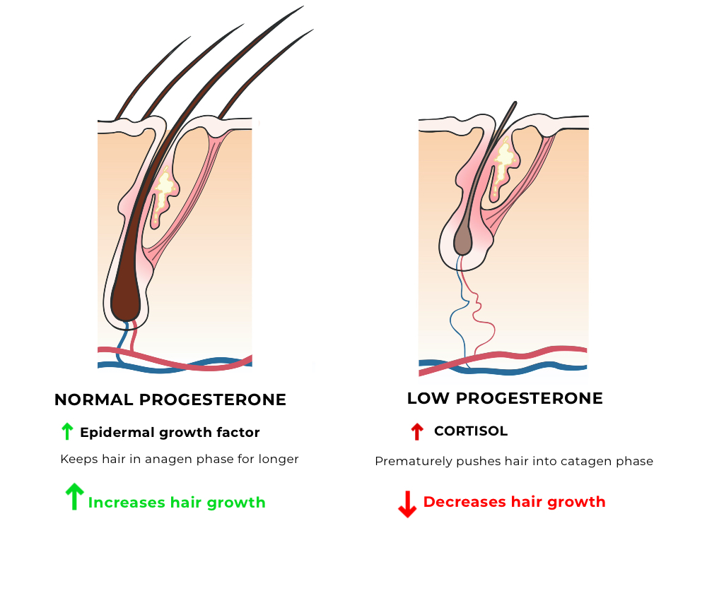 Progesterone and hair loss