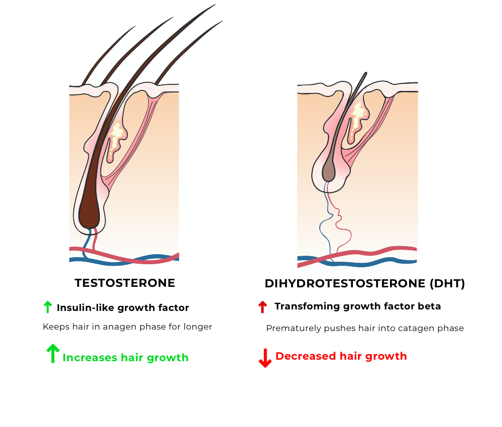 Testosterone and the hair growth cycle