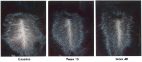 Minoxidil clinical trial results