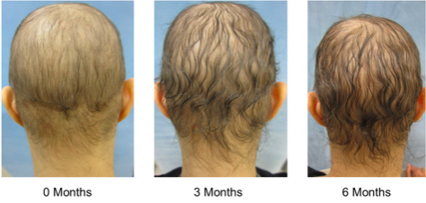 Treatment of hypertrichosis