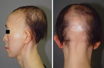 Trichorhinophalangeal syndrome